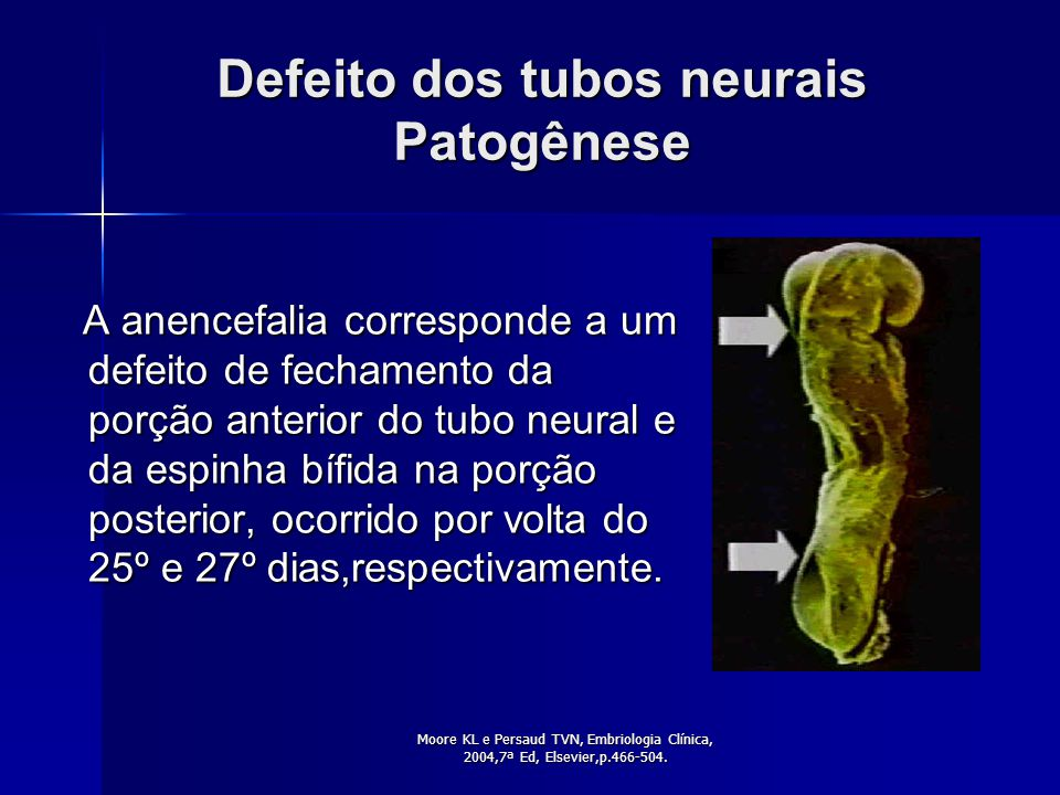 Defeito dos tubos neurais Patogênese