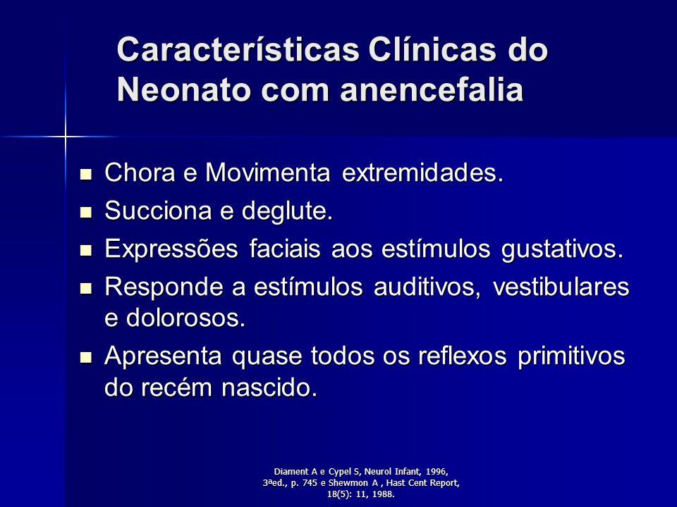 Características Clínicas do Neonato com anencefalia