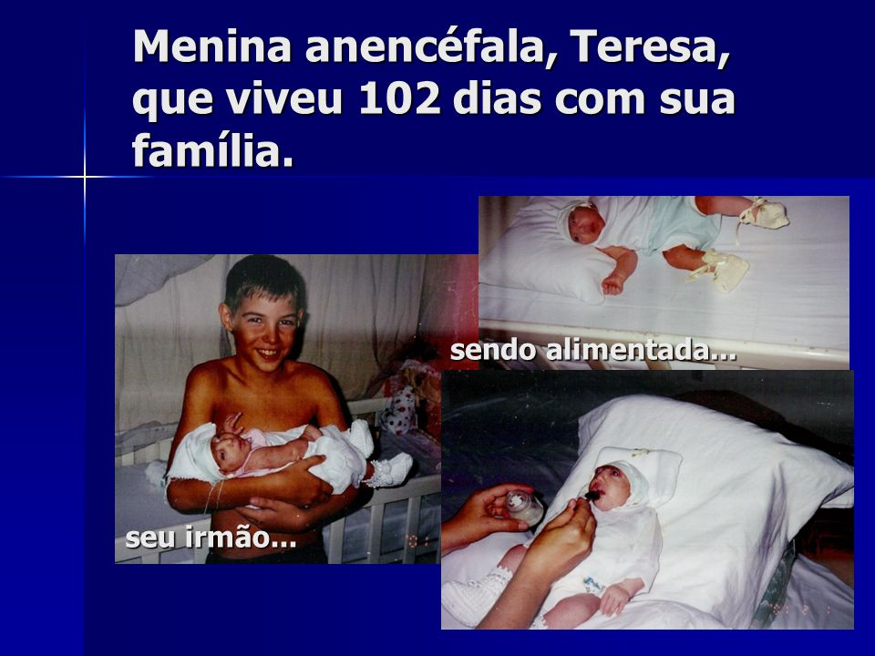 Menina anencéfala, Teresa, que viveu 102 dias com sua família.