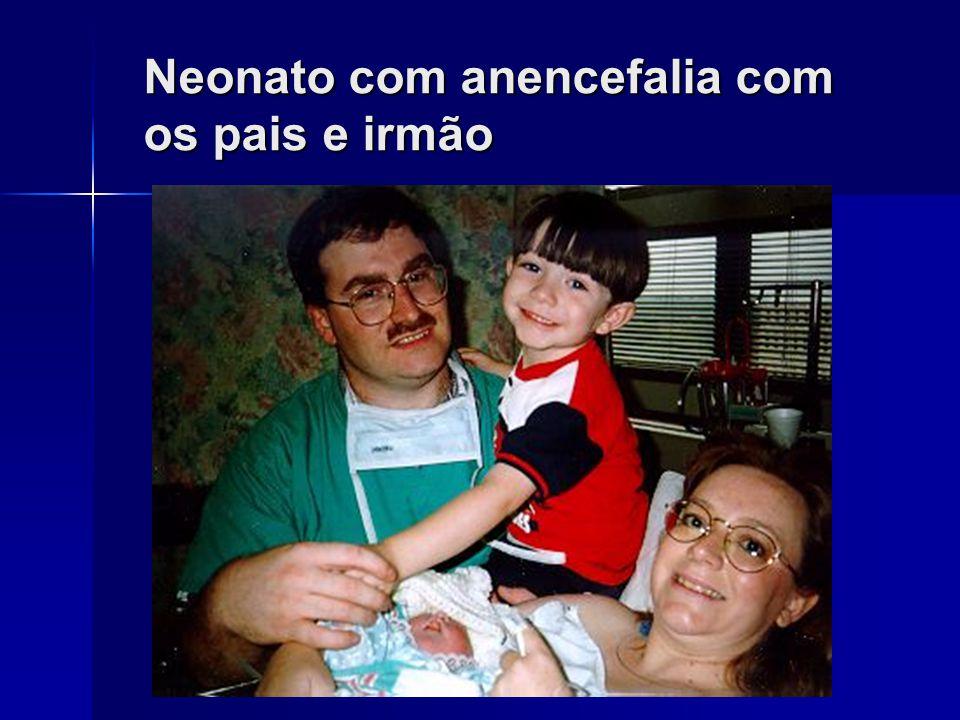 Neonato com anencefalia com os pais e irmão