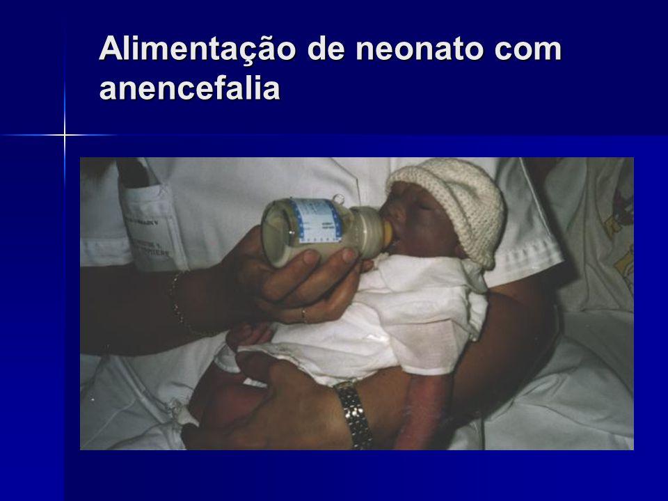 Alimentação de neonato com anencefalia