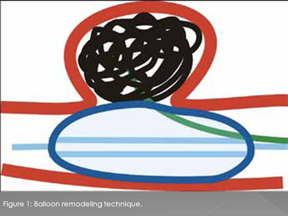 Figure 1: Balloon remodeling technique.