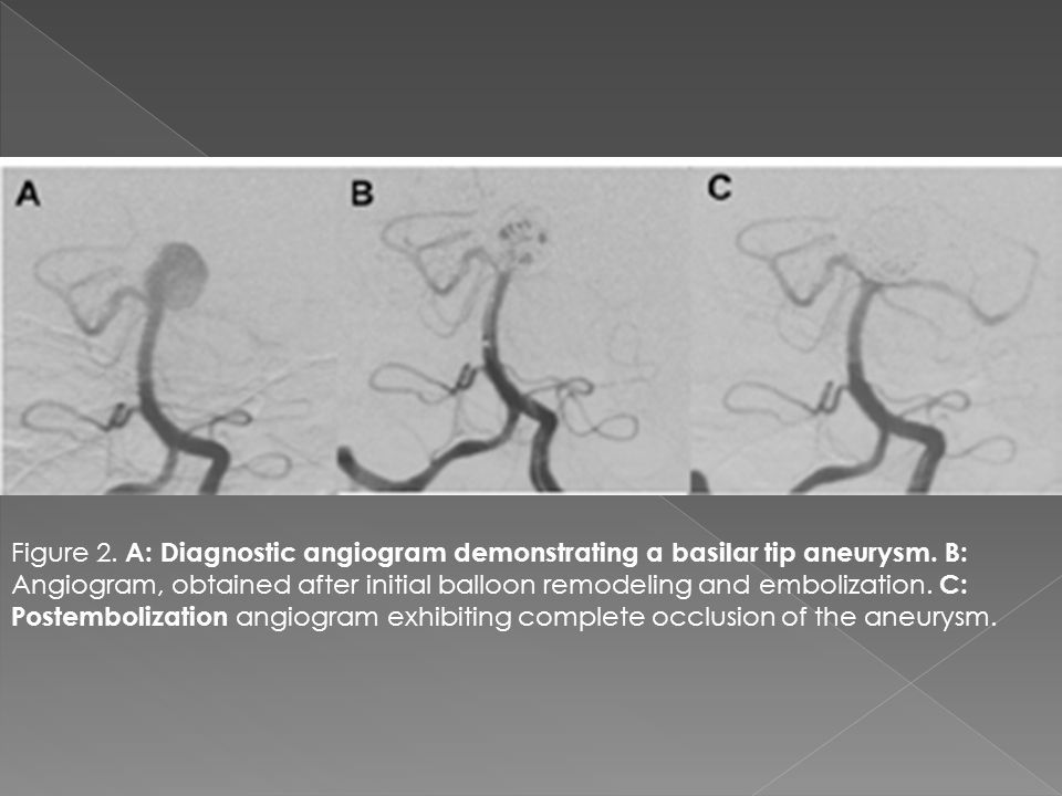 Figure 2. A: Diagnostic angiogram demonstrating a basilar tip aneurysm