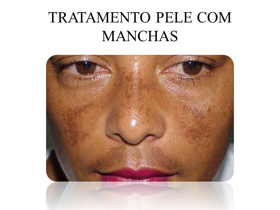 TRATAMENTO PELE COM MANCHAS
