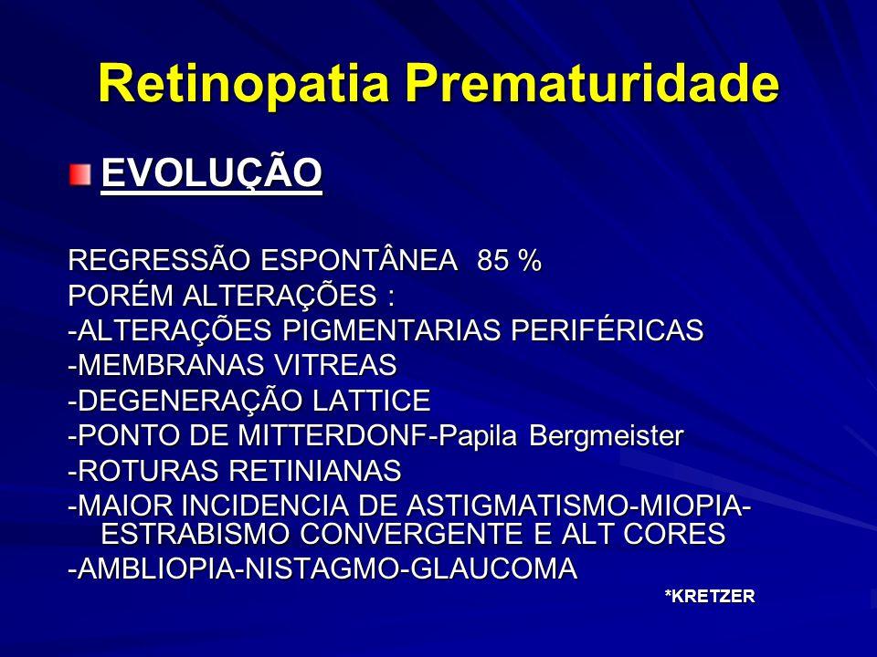 Retinopatia Prematuridade