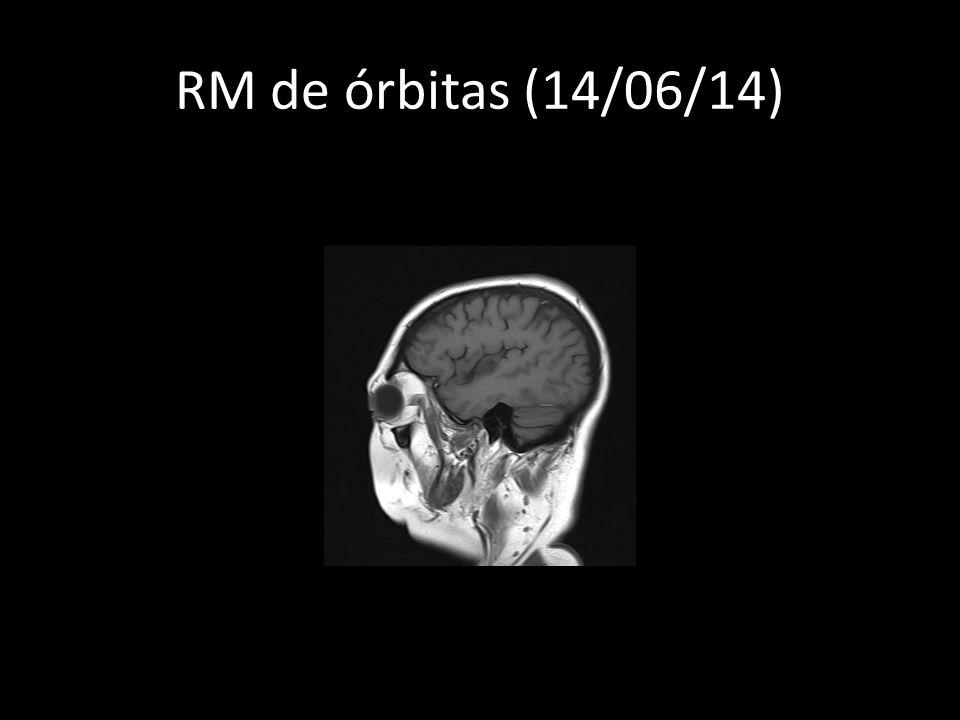RM de órbitas (14/06/14)