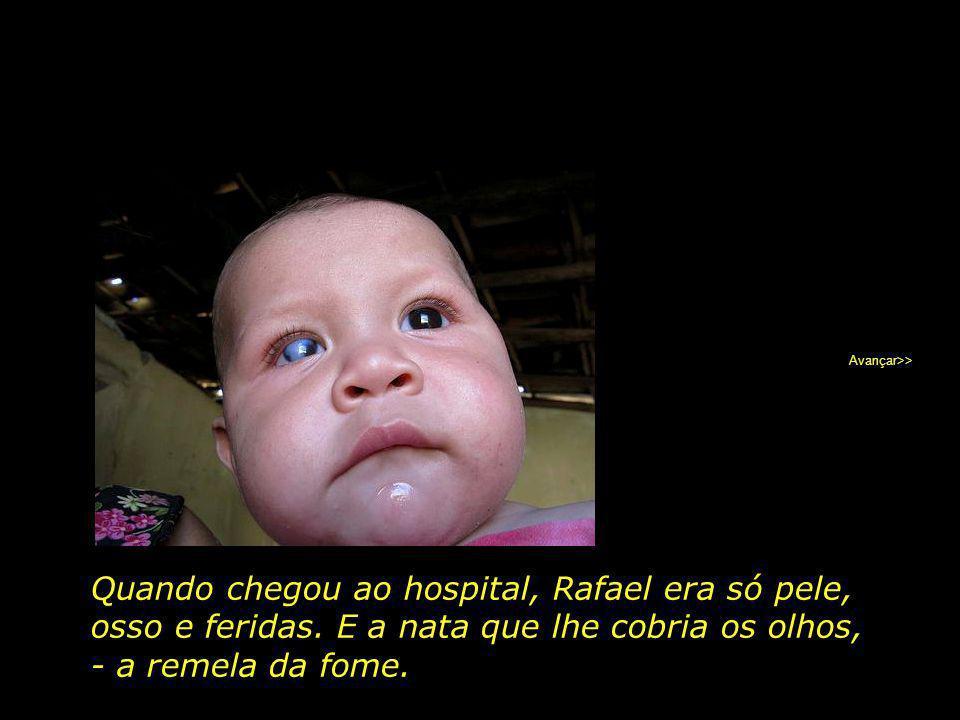 Quando chegou ao hospital, Rafael era só pele,