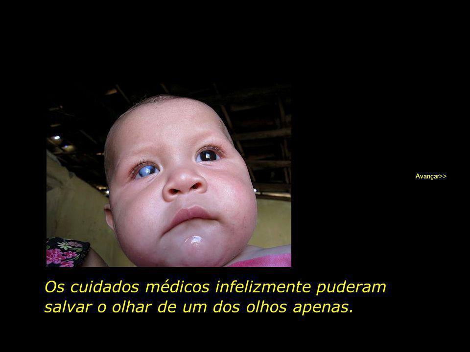 Avançar>> Os cuidados médicos infelizmente puderam salvar o olhar de um dos olhos apenas.