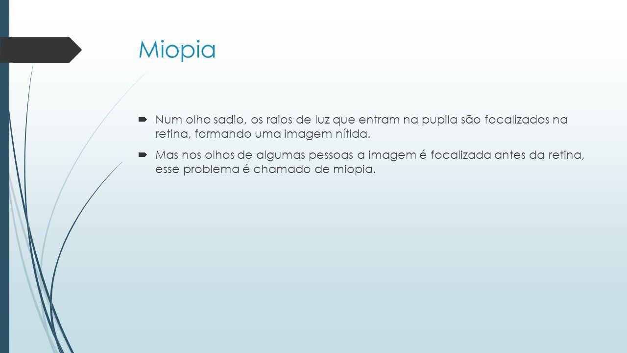 Miopia Num olho sadio, os raios de luz que entram na pupila são focalizados na retina, formando uma imagem nítida.
