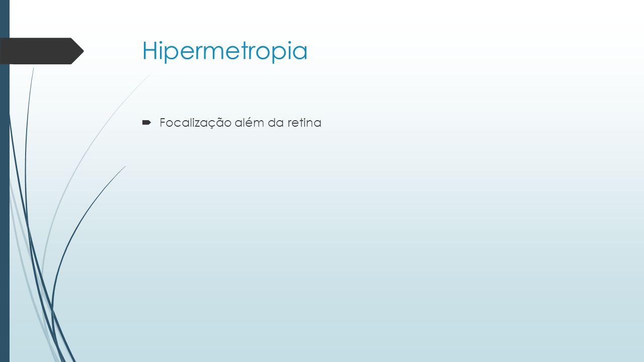 Hipermetropia Focalização além da retina