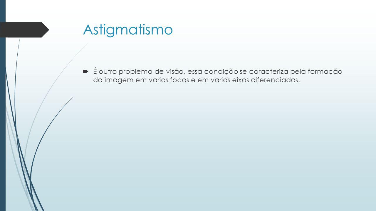 Astigmatismo É outro problema de visão, essa condição se caracteriza pela formação da imagem em varios focos e em varios eixos diferenciados.