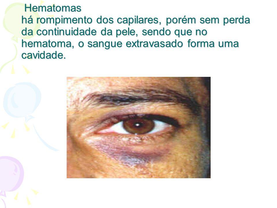 Hematomas há rompimento dos capilares, porém sem perda da continuidade da pele, sendo que no hematoma, o sangue extravasado forma uma cavidade.