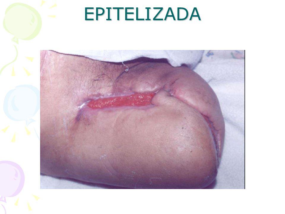 EPITELIZADA