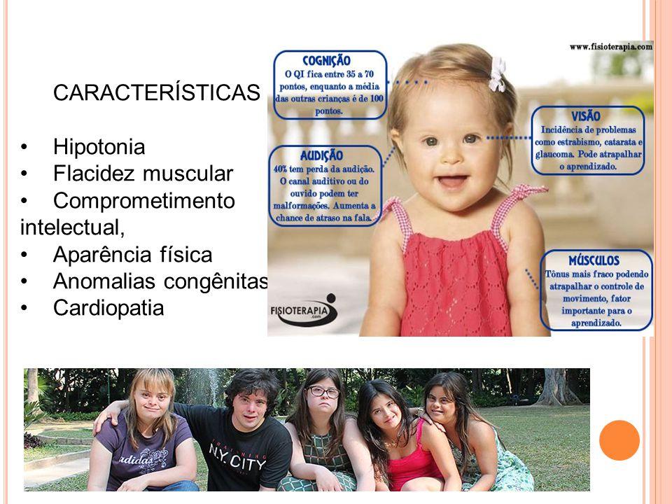 CARACTERÍSTICAS Hipotonia. Flacidez muscular. Comprometimento intelectual, Aparência física. Anomalias congênitas.