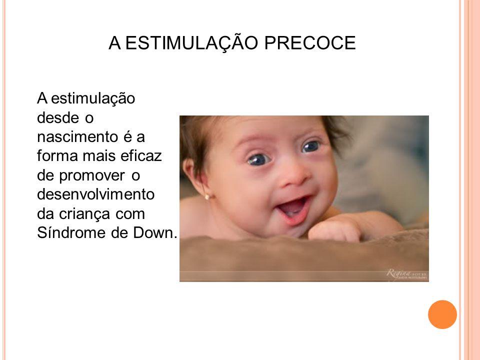 A ESTIMULAÇÃO PRECOCE A estimulação desde o nascimento é a forma mais eficaz de promover o desenvolvimento da criança com Síndrome de Down.