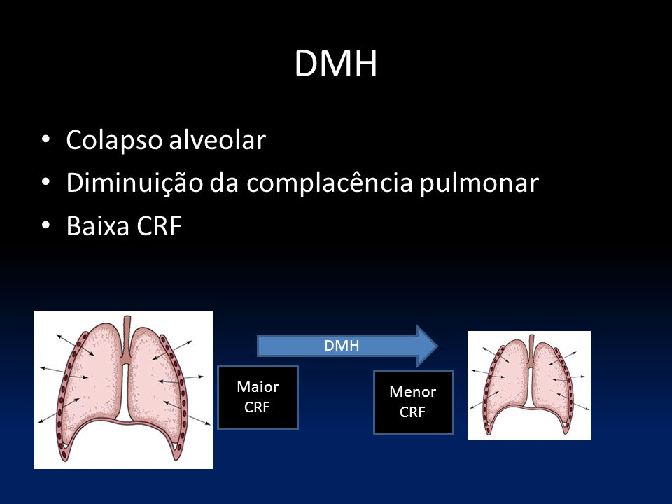 DMH Colapso alveolar Diminuição da complacência pulmonar Baixa CRF DMH