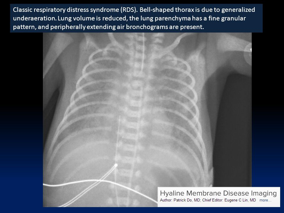 Classic respiratory distress syndrome (RDS)