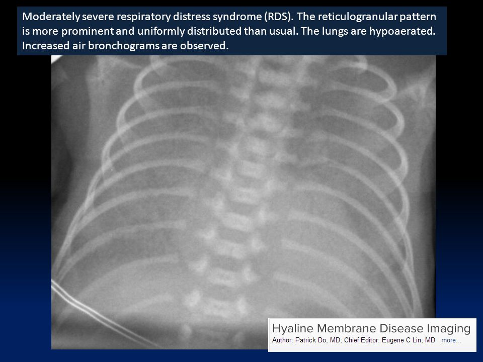 Moderately severe respiratory distress syndrome (RDS)