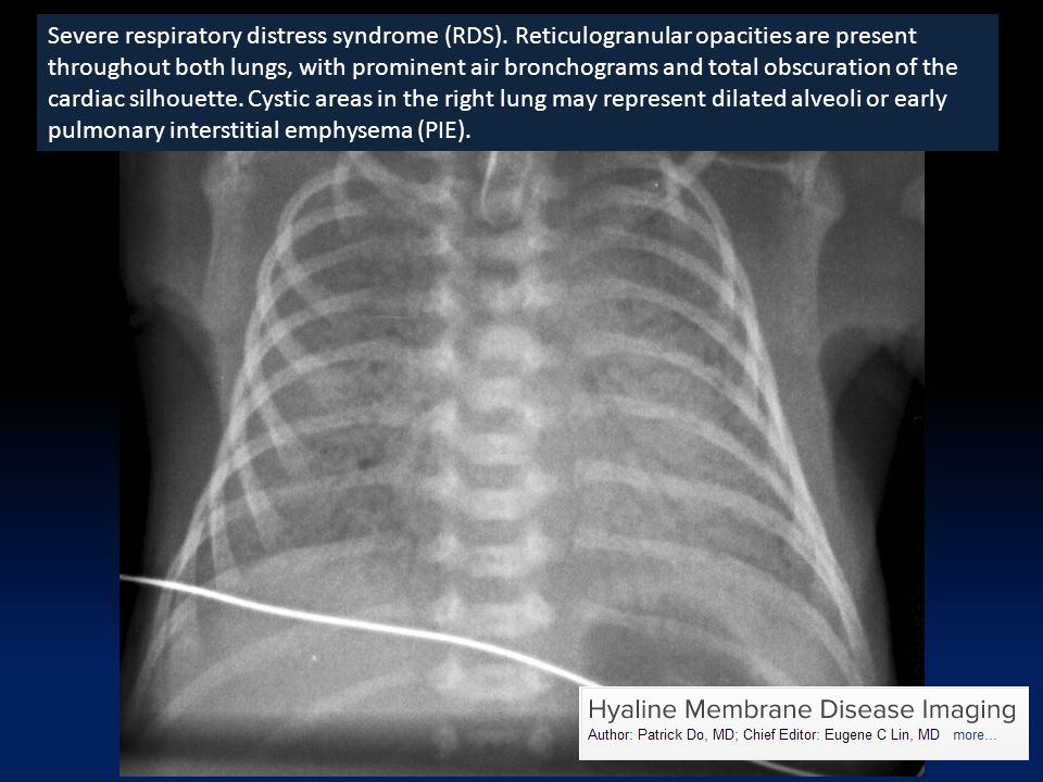 Severe respiratory distress syndrome (RDS)