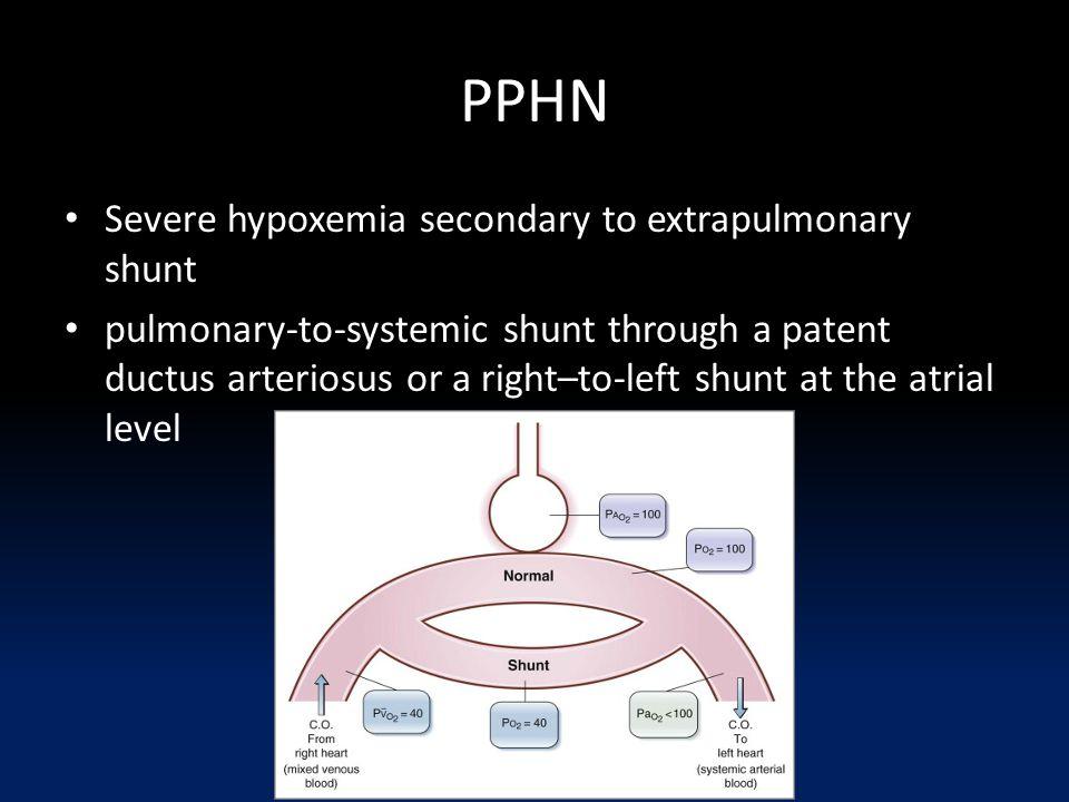 PPHN Severe hypoxemia secondary to extrapulmonary shunt