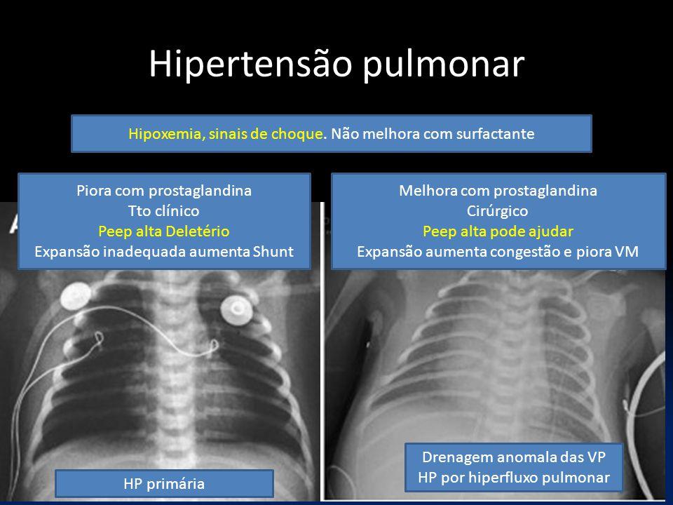 Hipertensão pulmonar Hipoxemia, sinais de choque. Não melhora com surfactante. Piora com prostaglandina.
