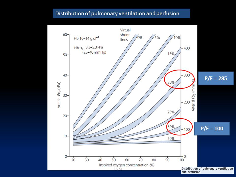 Distribution of pulmonary ventilation and perfusion