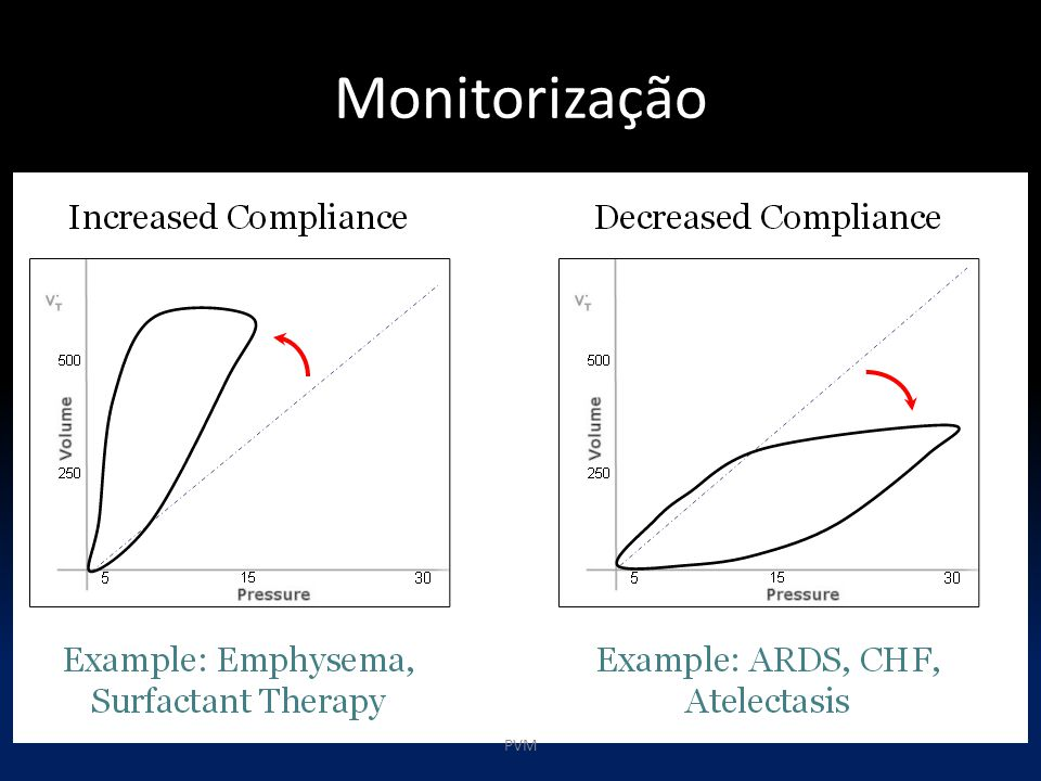 Monitorização PVM