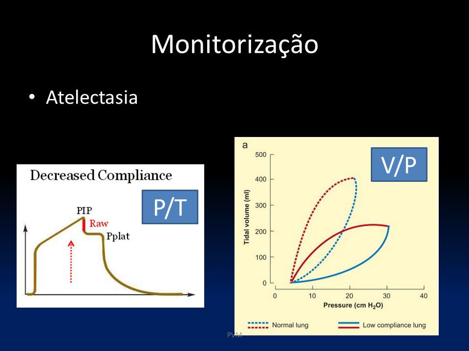 Monitorização Atelectasia V/P P/T PVM