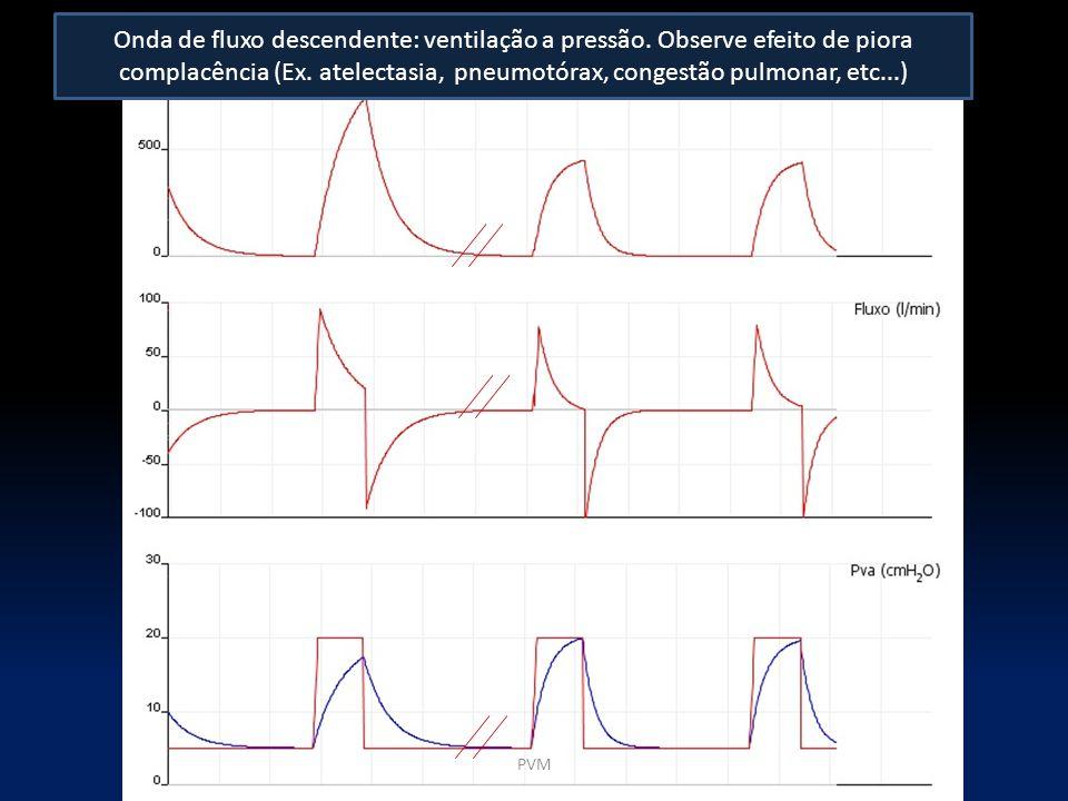 Onda de fluxo descendente: ventilação a pressão