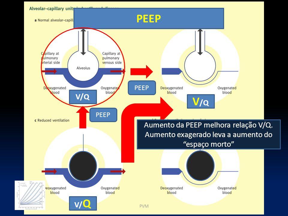 PEEP PEEP. V/Q. V/Q. PEEP. Aumento da PEEP melhora relação V/Q. Aumento exagerado leva a aumento do espaço morto