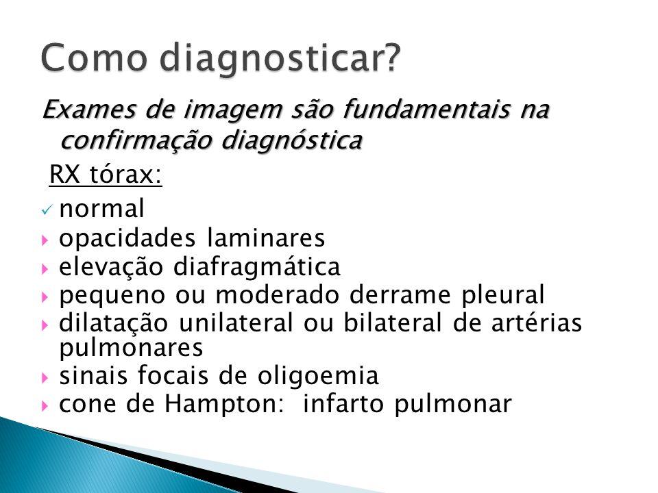 Como diagnosticar Exames de imagem são fundamentais na confirmação diagnóstica. RX tórax: normal.