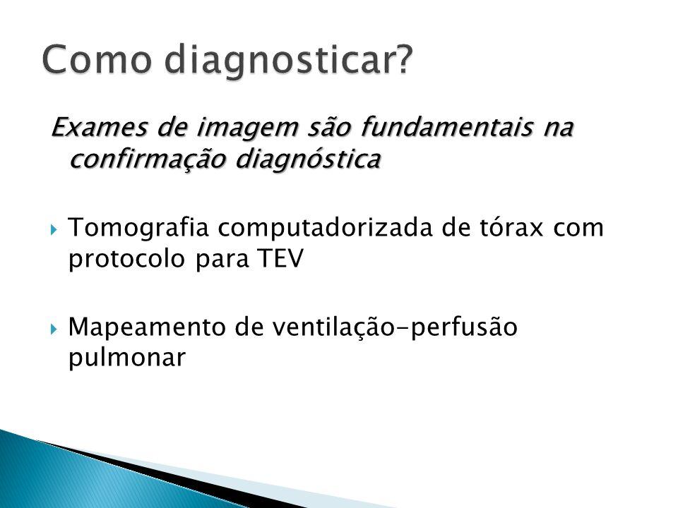 Como diagnosticar Exames de imagem são fundamentais na confirmação diagnóstica. Tomografia computadorizada de tórax com protocolo para TEV.