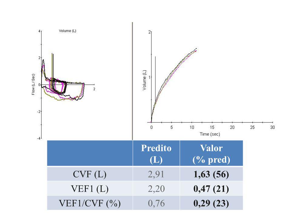 Predito (L) Valor. (% pred) CVF (L) 2,91. 1,63 (56) VEF1 (L) 2,20. 0,47 (21) VEF1/CVF (%) 0,76.