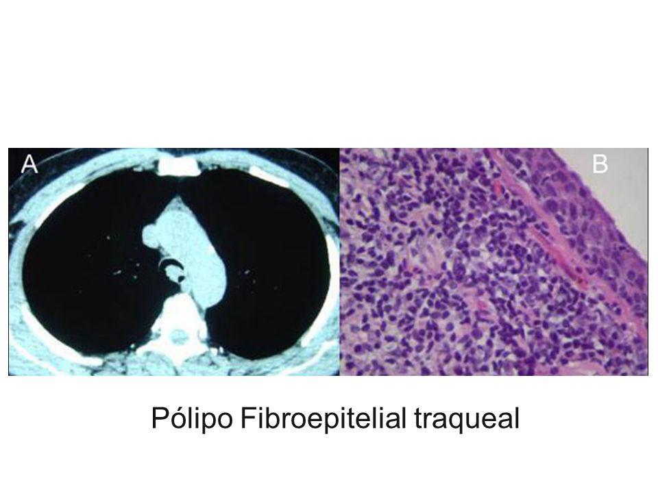 Pólipo Fibroepitelial traqueal
