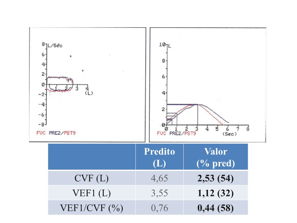 Predito (L) Valor. (% pred) CVF (L) 4,65. 2,53 (54) VEF1 (L) 3,55. 1,12 (32) VEF1/CVF (%) 0,76.