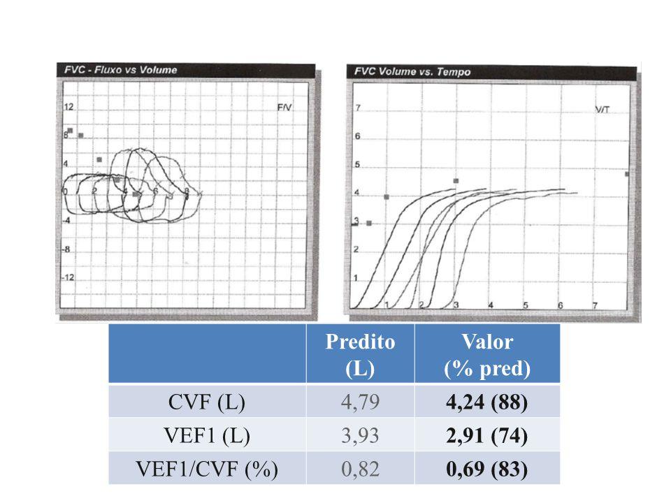 Predito (L) Valor. (% pred) CVF (L) 4,79. 4,24 (88) VEF1 (L) 3,93. 2,91 (74) VEF1/CVF (%) 0,82.