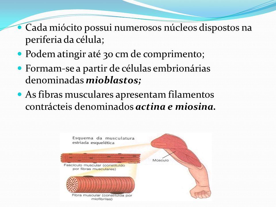 Cada miócito possui numerosos núcleos dispostos na periferia da célula;