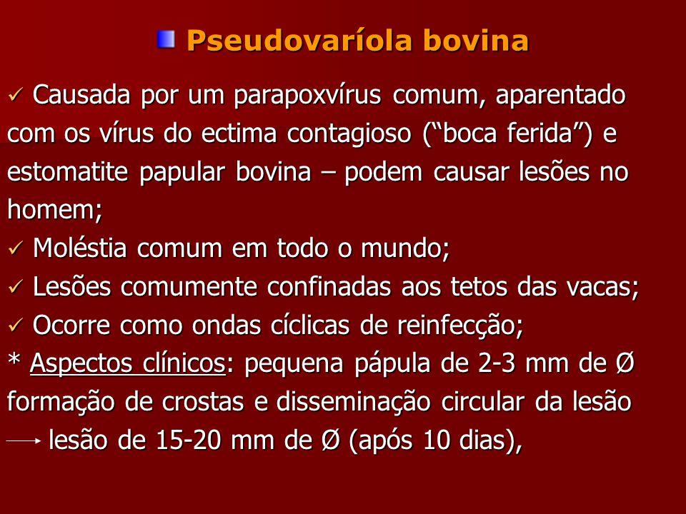 Pseudovaríola bovina Causada por um parapoxvírus comum, aparentado