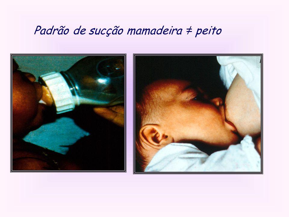 Padrão de sucção mamadeira ≠ peito