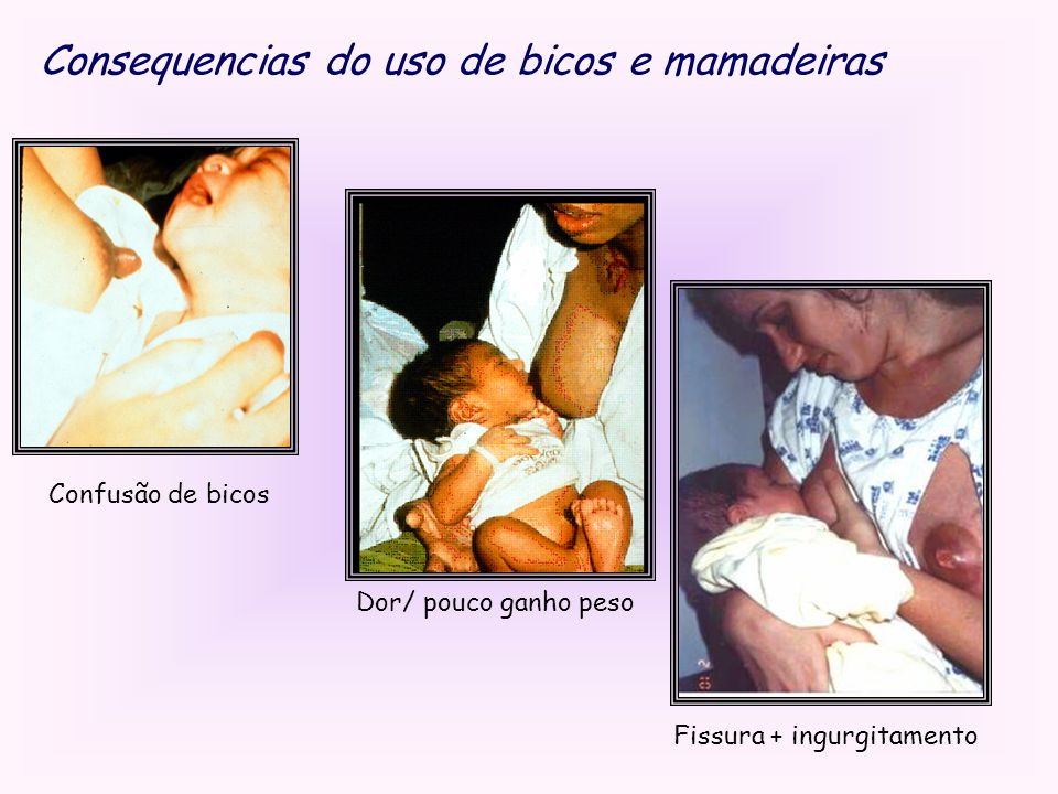 Consequencias do uso de bicos e mamadeiras