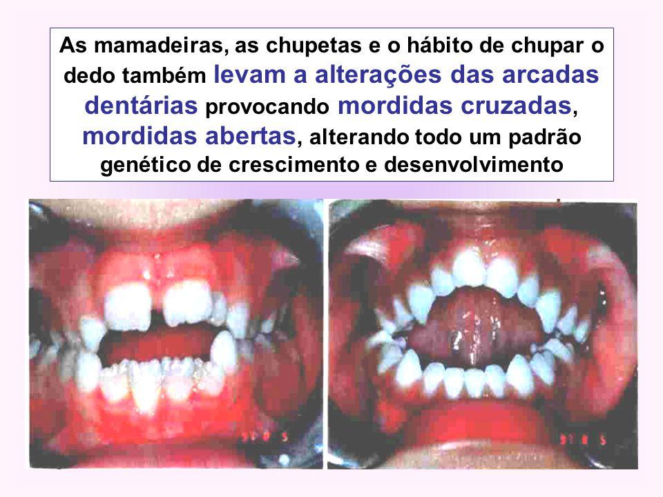 As mamadeiras, as chupetas e o hábito de chupar o dedo também levam a alterações das arcadas dentárias provocando mordidas cruzadas, mordidas abertas, alterando todo um padrão genético de crescimento e desenvolvimento