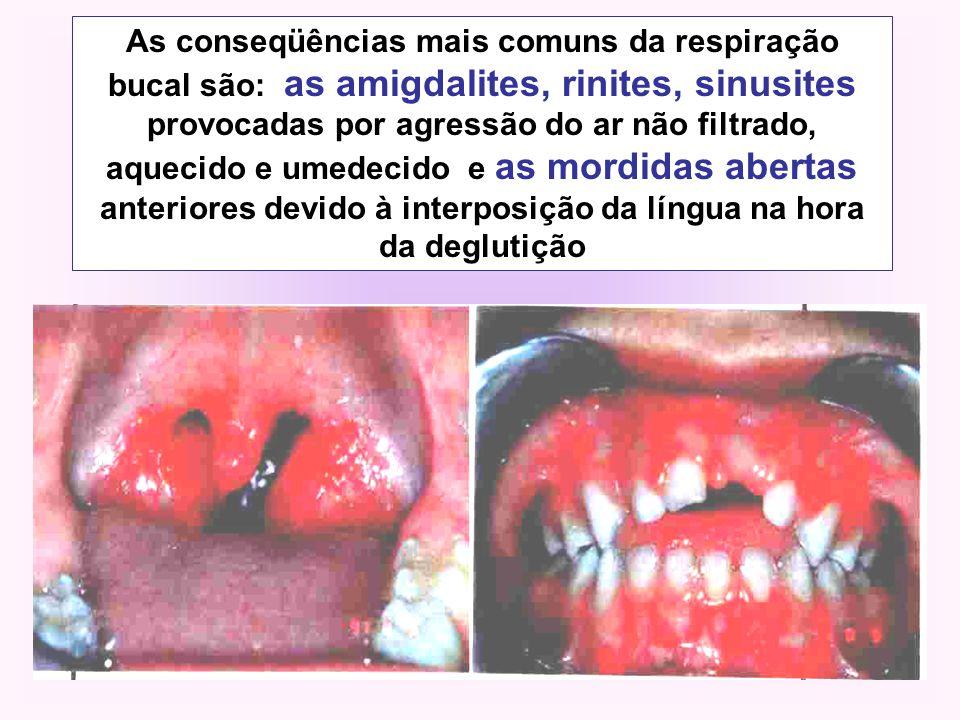 As conseqüências mais comuns da respiração bucal são: as amigdalites, rinites, sinusites provocadas por agressão do ar não filtrado, aquecido e umedecido e as mordidas abertas anteriores devido à interposição da língua na hora da deglutição
