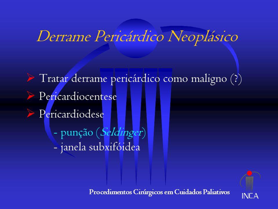 Derrame Pericárdico Neoplásico