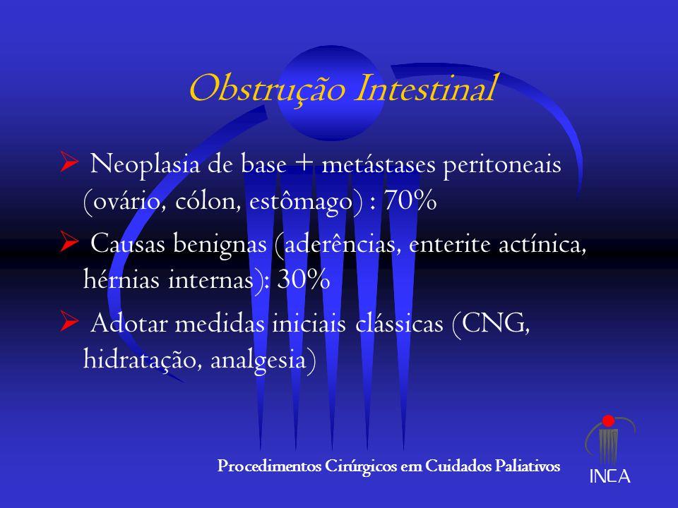 Obstrução Intestinal Neoplasia de base + metástases peritoneais (ovário, cólon, estômago) : 70%