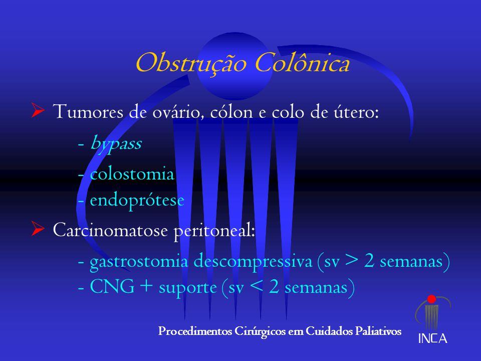 Obstrução Colônica Tumores de ovário, cólon e colo de útero: - bypass