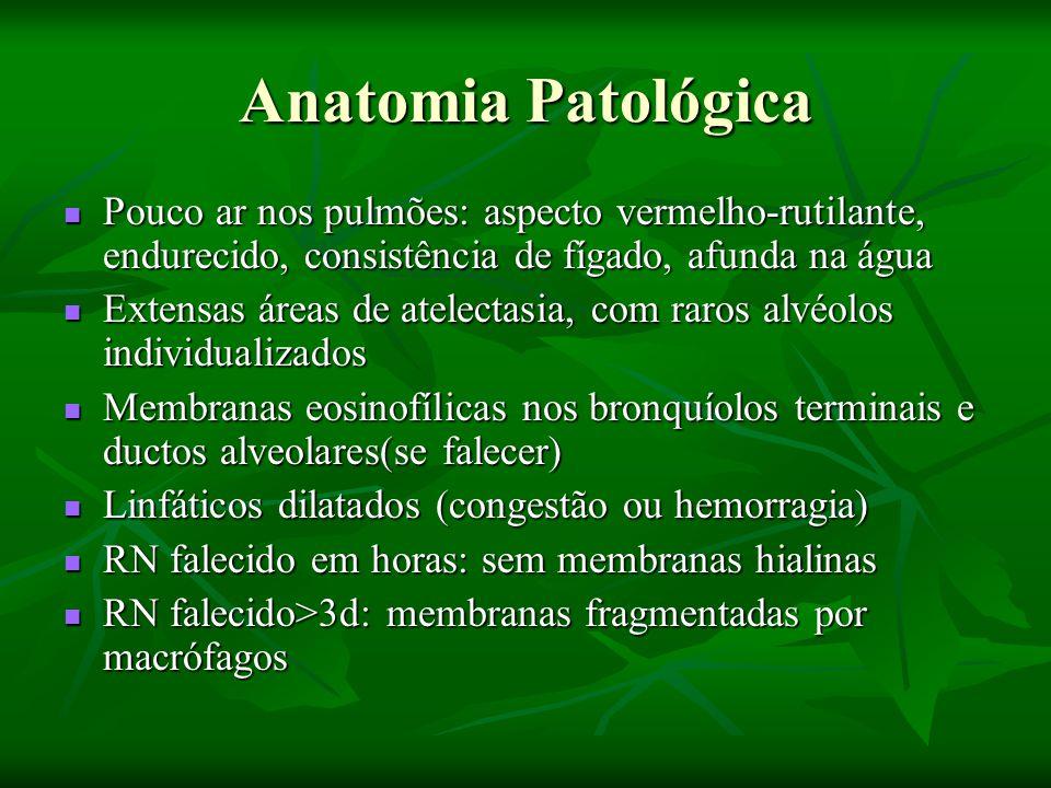 Anatomia Patológica Pouco ar nos pulmões: aspecto vermelho-rutilante, endurecido, consistência de fígado, afunda na água.