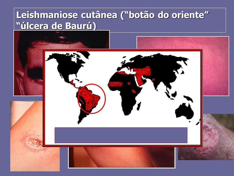 Leishmaniose cutânea ( botão do oriente úlcera de Baurú)