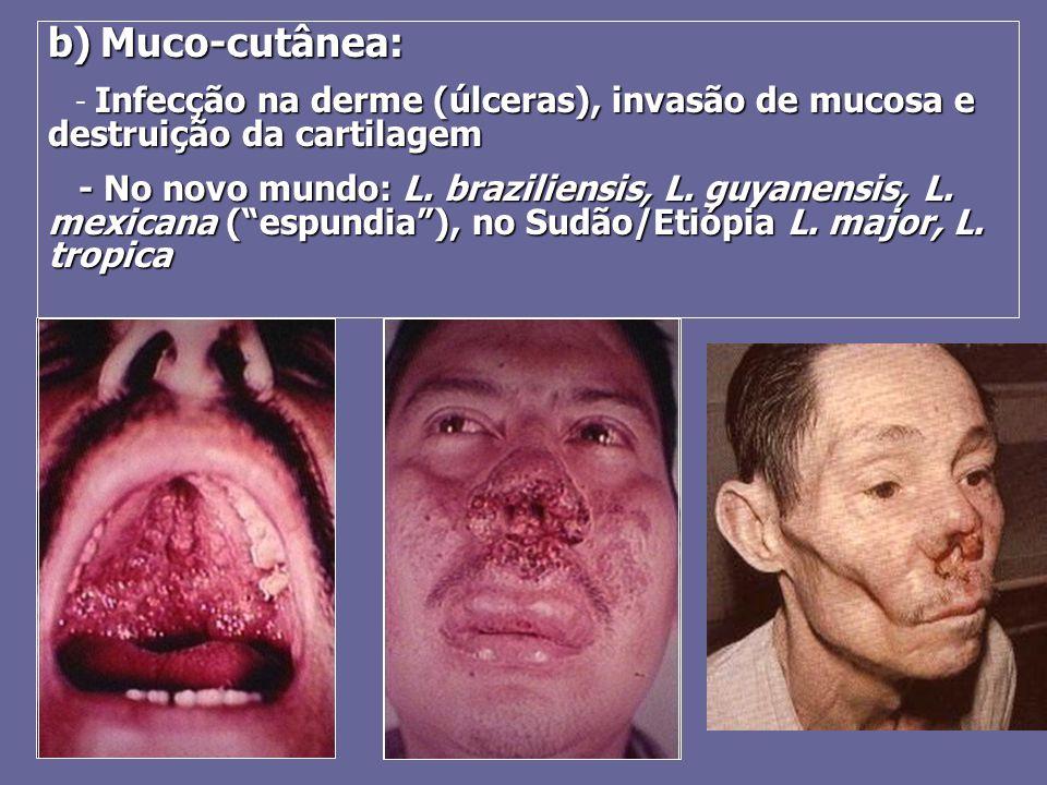 b) Muco-cutânea: - Infecção na derme (úlceras), invasão de mucosa e destruição da cartilagem.