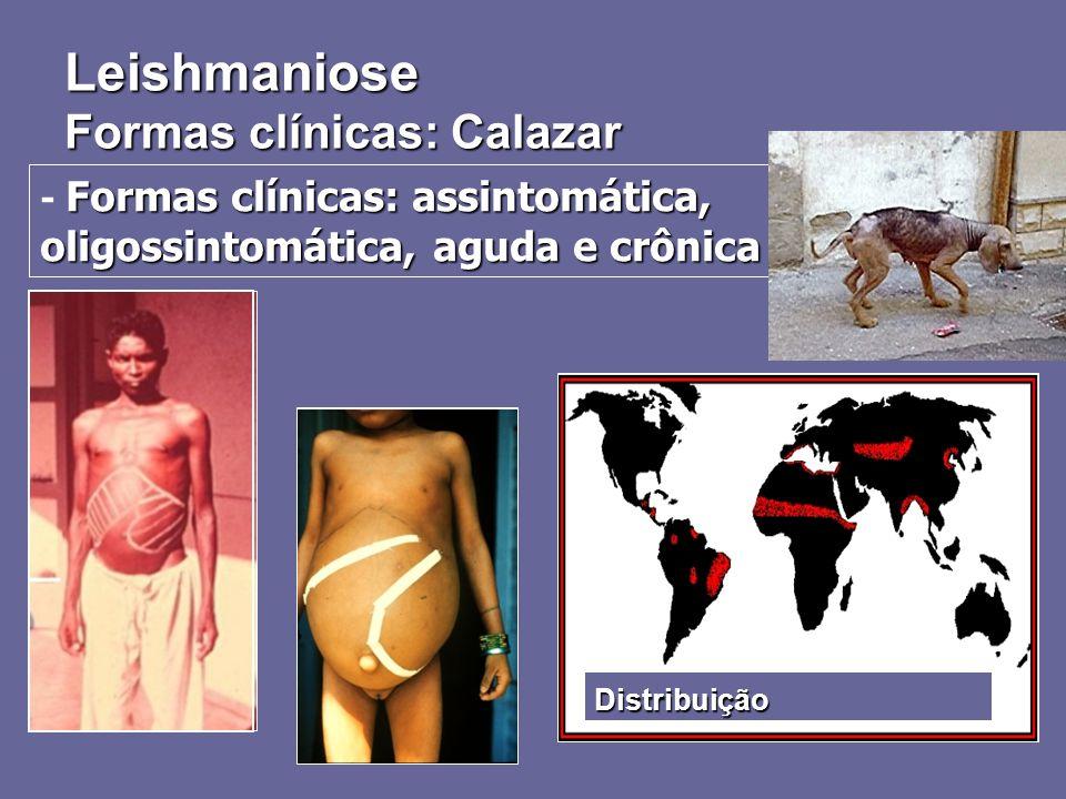 Leishmaniose Formas clínicas: Calazar