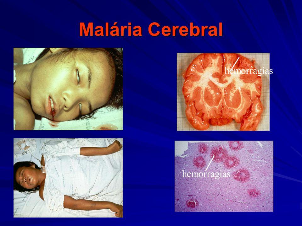Malária Cerebral hemorragias hemorragias